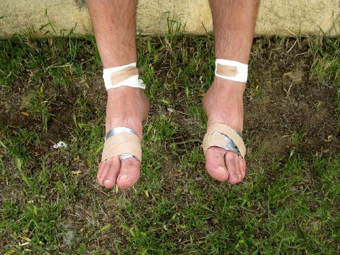 These feet (not mine) took some punishment on the Camino